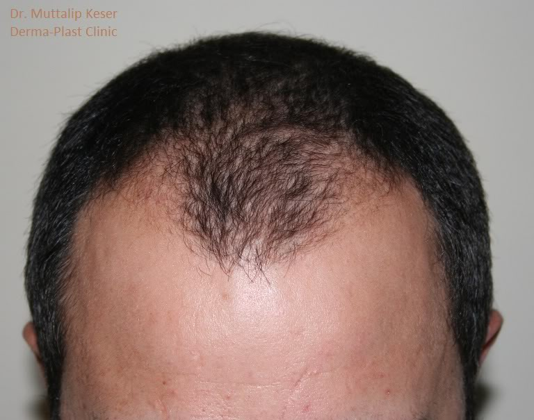 is-hair-transplant-in-turkey-safe (15)
