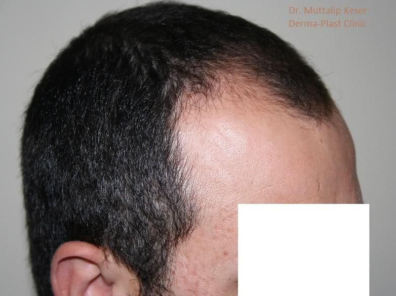 is-hair-transplant-in-turkey-safe (2)