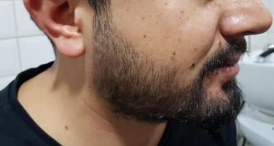 mustache-transplant (1)