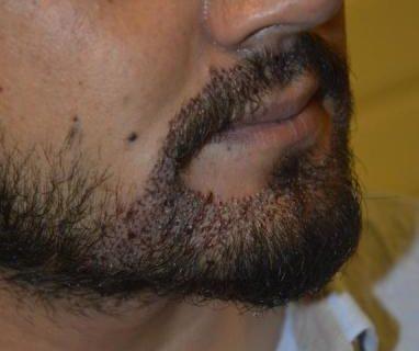 mustache-transplant (5)