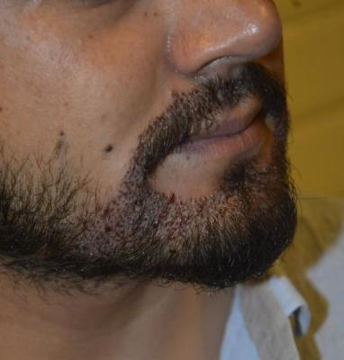 BEARD+MUSTACHE TRANSPLANT AND FUE-700+2100 GRAFTS-ANTALYA TURKEY