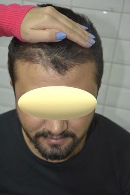 mustache-transplant (7)