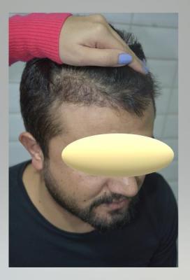 mustache-transplant (8)