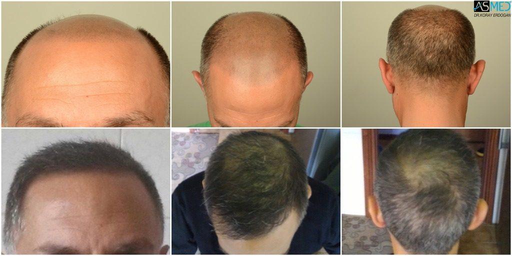 Best-hair-transplant-in-turkey (1)