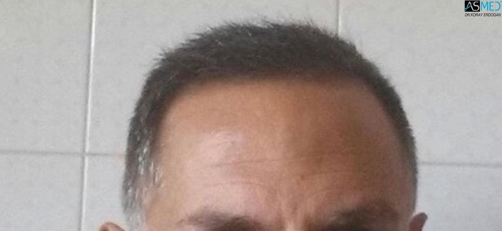 Best-hair-transplant-in-turkey (12)