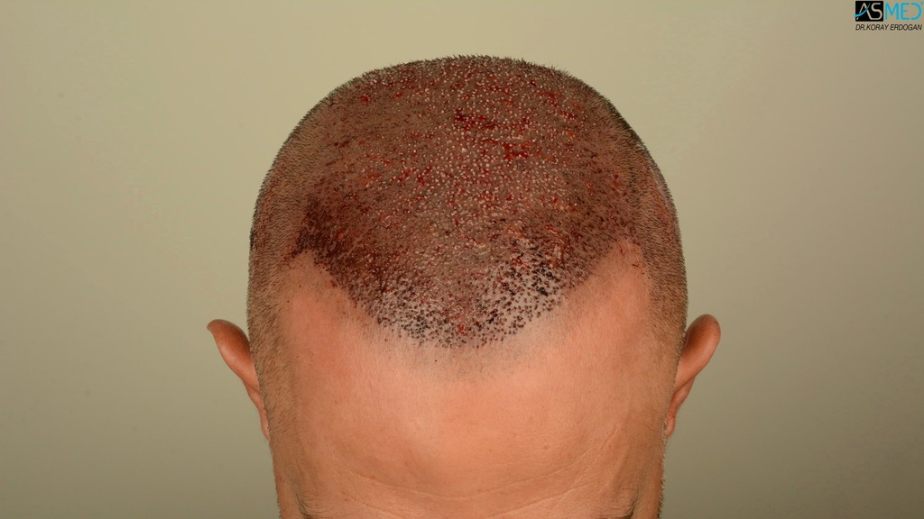 Best-hair-transplant-in-turkey (7)