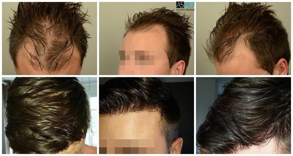 Hair-transplant-in-turkey-best-clinic (1)