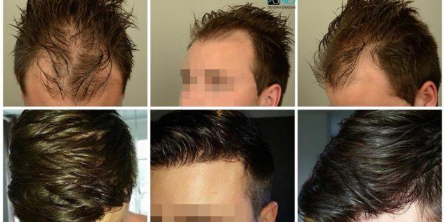Hair-transplant-in-turkey-best-clinic (1)