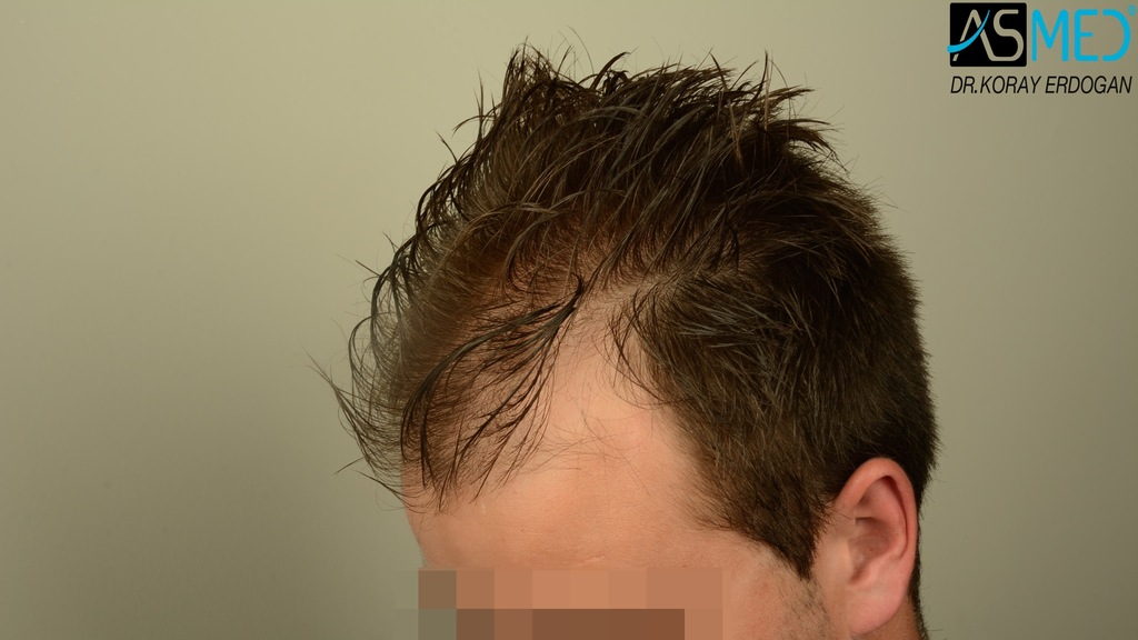 Hair-transplant-in-turkey-best-clinic (11)