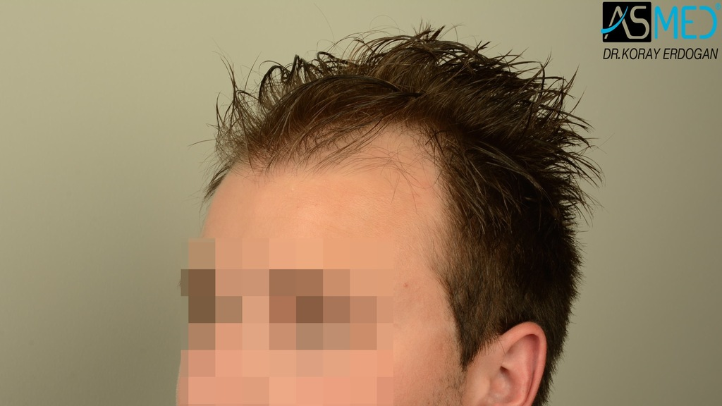 Hair-transplant-in-turkey-best-clinic (12)