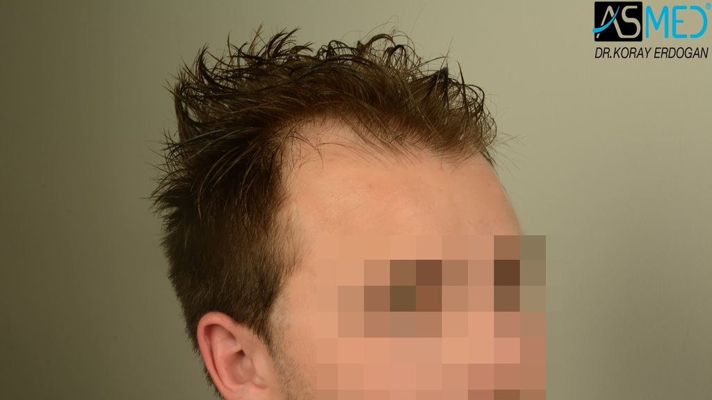 Hair-transplant-in-turkey-best-clinic (13)