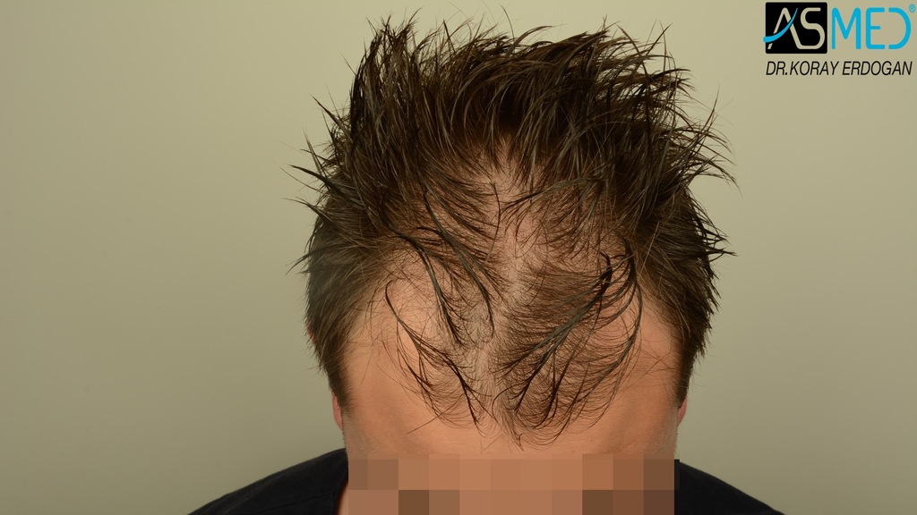 Hair-transplant-in-turkey-best-clinic (14)