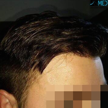 Hair-transplant-in-turkey-best-clinic (3)