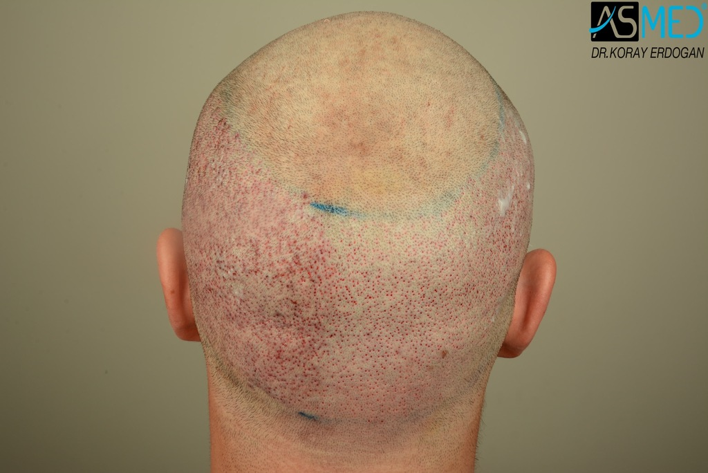 Hair-transplant-in-turkey-best-clinic (5)