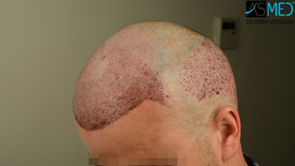 Hair-transplant-in-turkey-best-clinic (6)