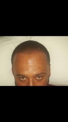 best-hair-transplant-in-istanbul (10)