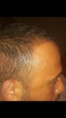 best-hair-transplant-in-istanbul (11)