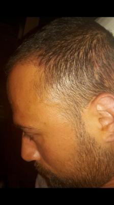 best-hair-transplant-in-istanbul (12)