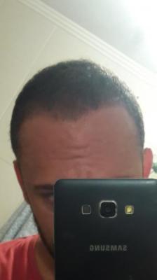 best-hair-transplant-in-istanbul (13)