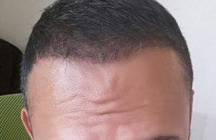 best-hair-transplant-in-istanbul (16)