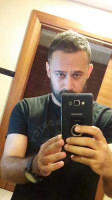 best-hair-transplant-in-istanbul (18)