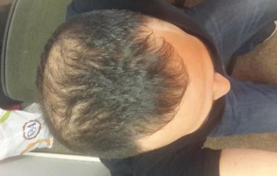 best-hair-transplant-in-istanbul (22)