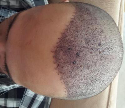 best-hair-transplant-in-istanbul (3)