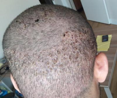 best-hair-transplant-in-istanbul (4)