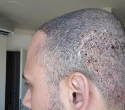 best-hair-transplant-in-istanbul (5)