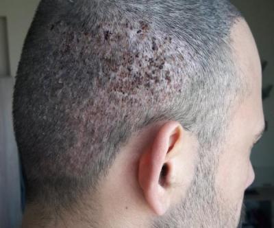 best-hair-transplant-in-istanbul (6)