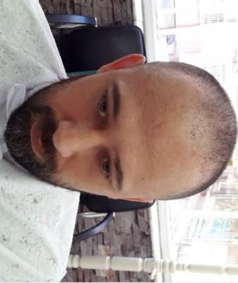 best-hair-transplant-in-istanbul (7)