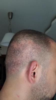 best-hair-transplant-in-istanbul (8)
