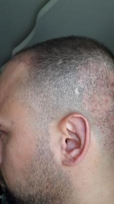 best-hair-transplant-in-istanbul (9)