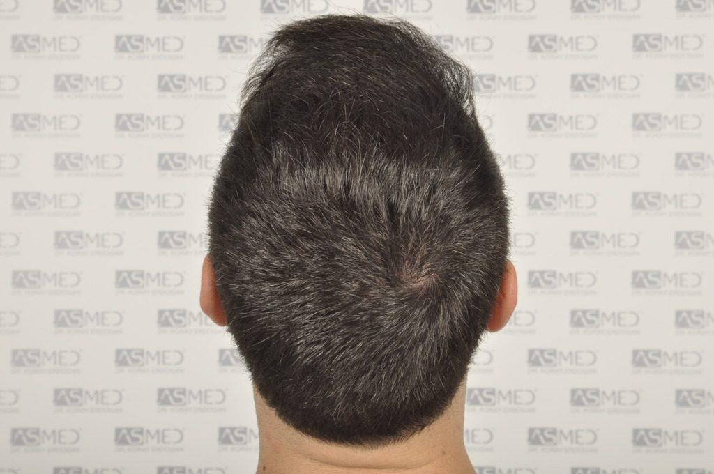 best-hair-transplant-turkey (10)