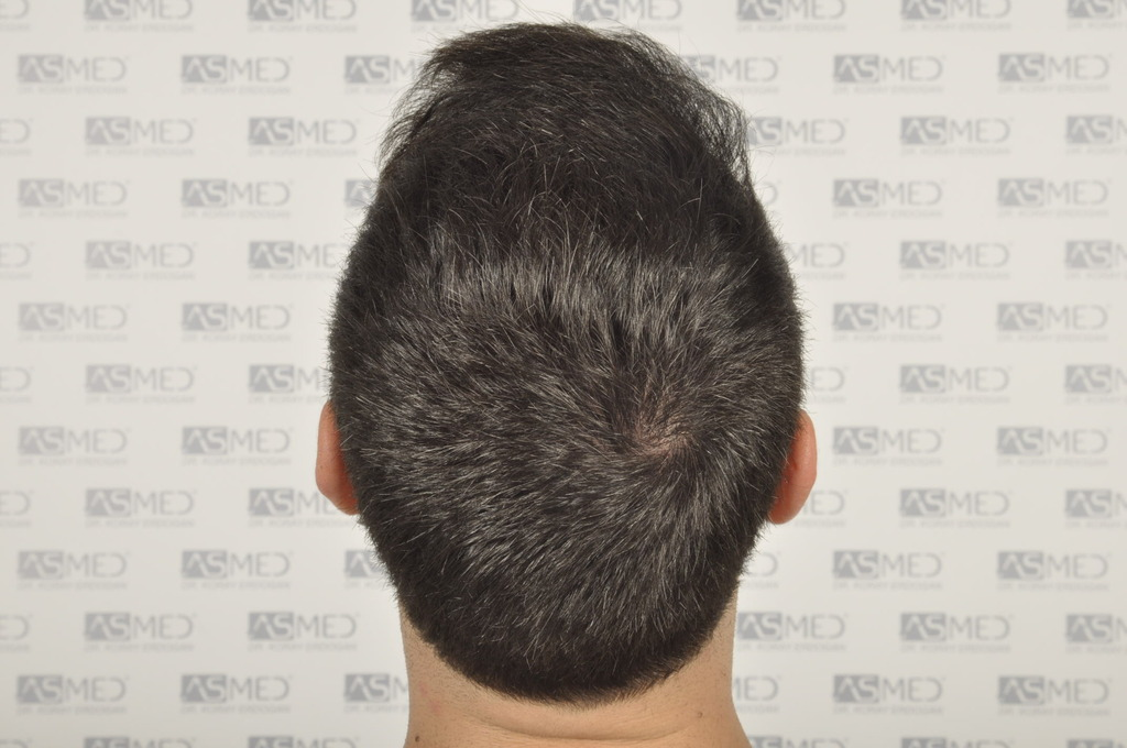 Dr.KORAY ERDOGAN-2800 Grafts Performed