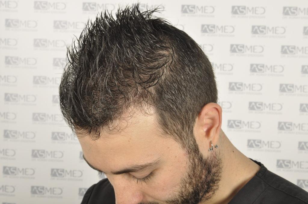 best-hair-transplant-turkey (15)