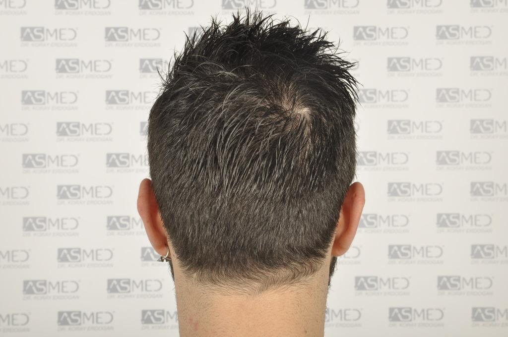 best-hair-transplant-turkey (16)