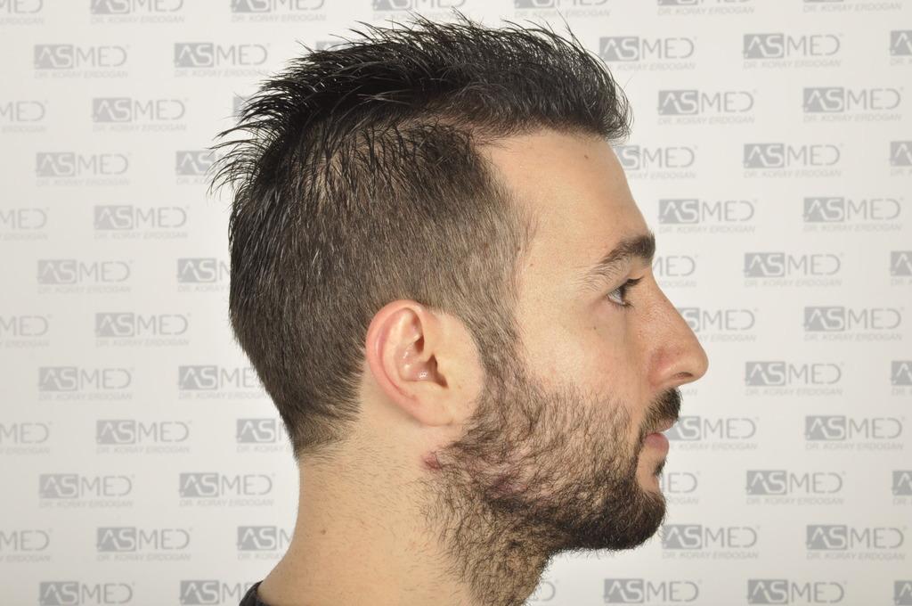 best-hair-transplant-turkey (17)