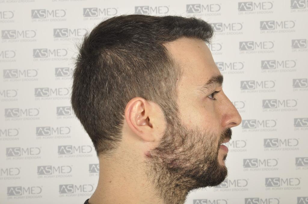 best-hair-transplant-turkey (7)