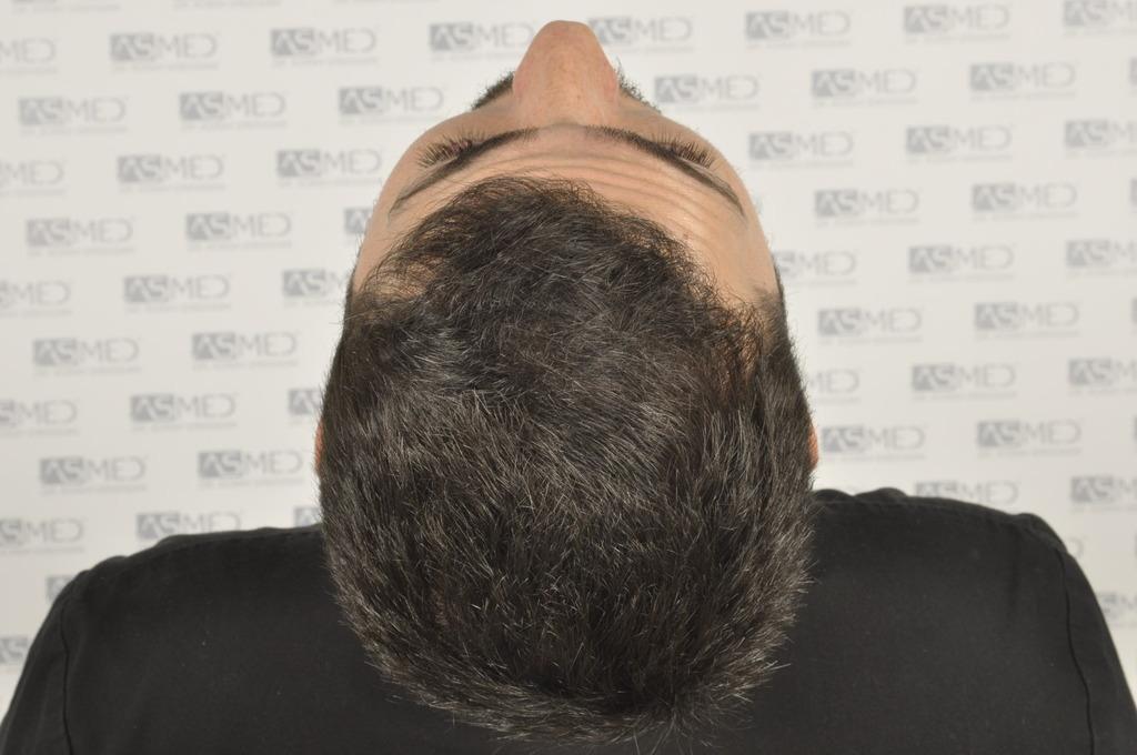 best-hair-transplant-turkey (9)