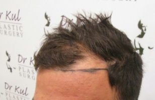 dr-kul-hair-transplant-results (11)