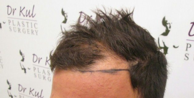 dr-kul-hair-transplant-results (11)