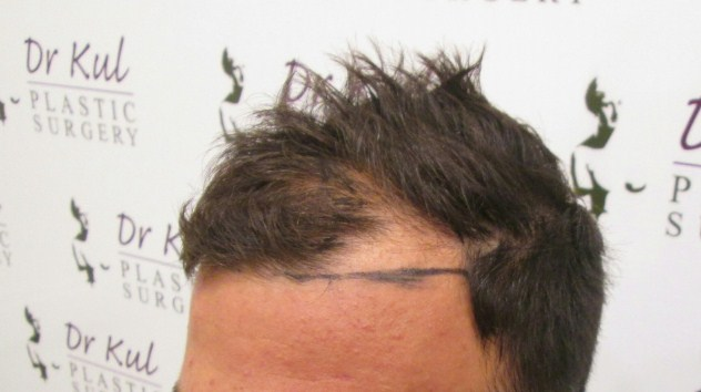DR.KUL-HAIR TRANSPLANT FUE-2500 GRAFTS-TURKEY