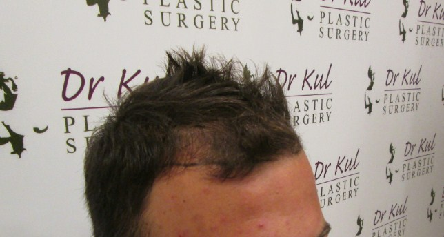 dr-kul-hair-transplant-results (12)