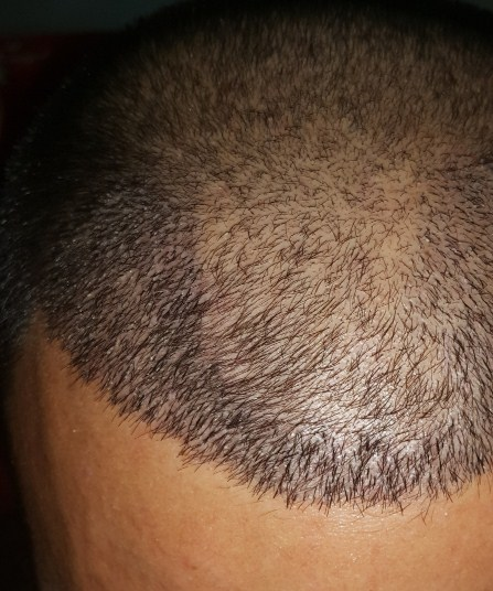 dr-kul-hair-transplant-results (16)