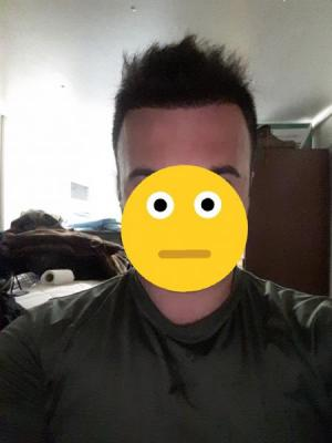 dr-kul-hair-transplant-results (18)