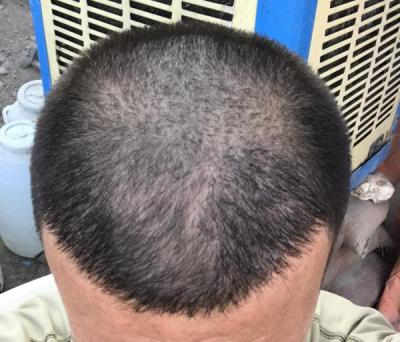 dr-kul-hair-transplant-results (9)