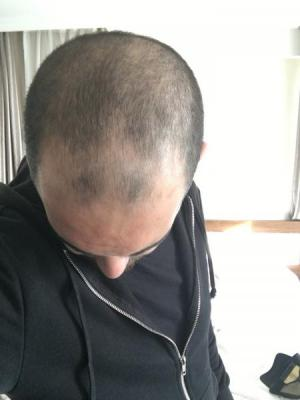 before-hair-transplant