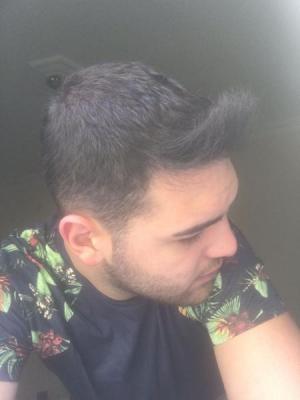hair-restoration (18)