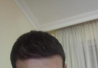 hair-restoration (21)
